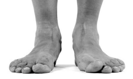 Flat Feet (Pes Plano Valgus)