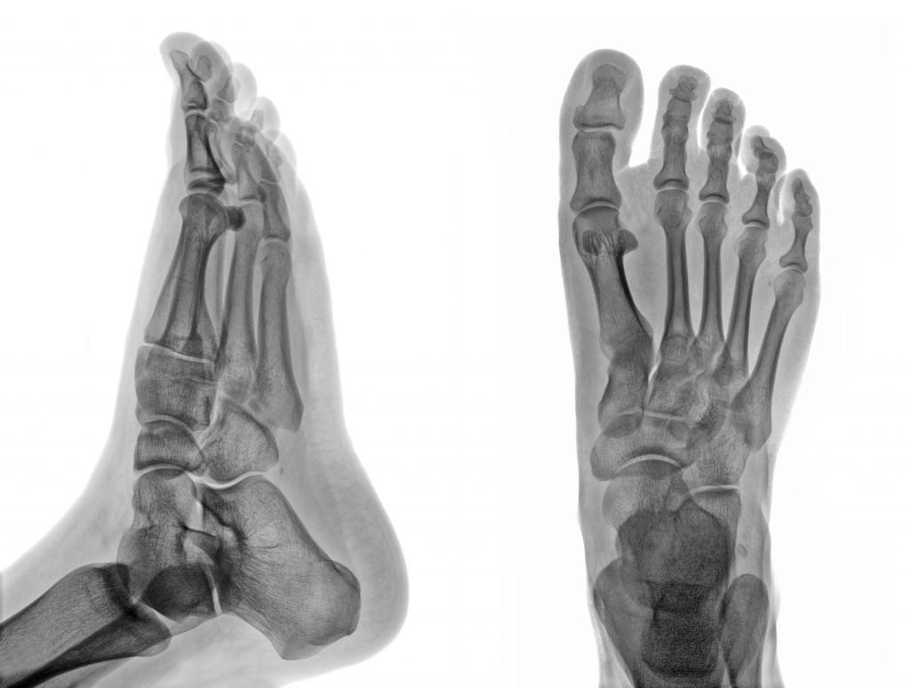 Big Toe Joint Pain (Hallux Limitus/Rigidus)