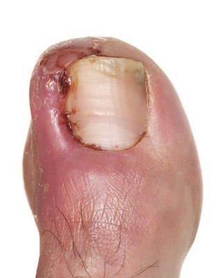 Compressed ingrowing toenail