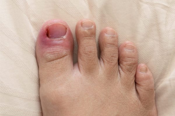 Rotten nails, Close up of rotten toenails. Puffiness,redness.