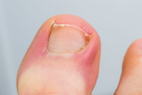 close-up photo of a toenail infection in human