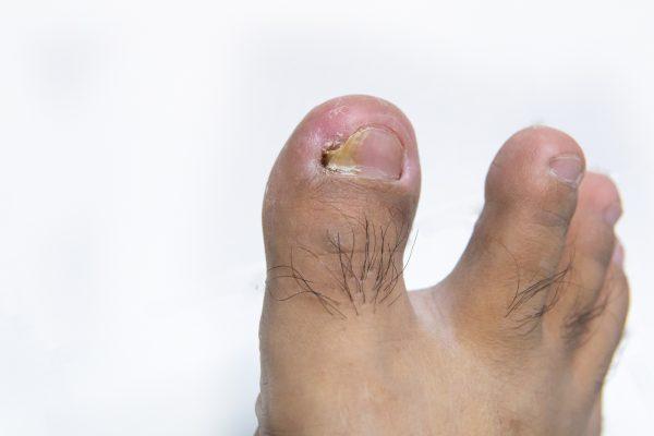 ingrown nail on white background