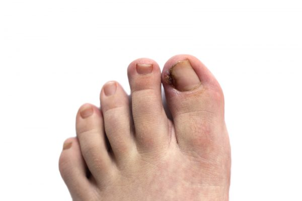 Foot with ingrown toenail isolated on white. Sore and swollen toe closeup