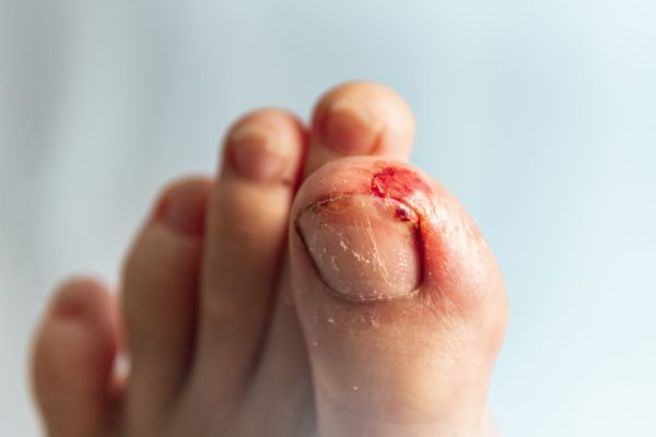 Close-up Of Bleeding Toenail Against Wall