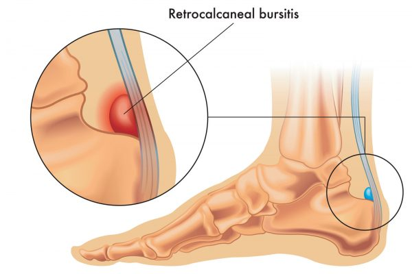 Illustration showing the position of the normal retrocalcaneal bursa in the foot, and in enlarged detail a retrocalcaneal bursitis, annotated on white.