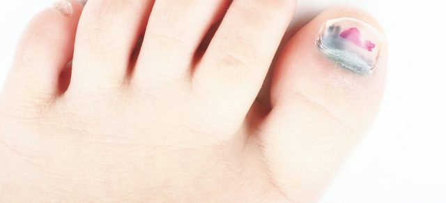 Ingrowing & Painful toenails