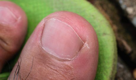 Ingrowing Toenails & Nail Surgery